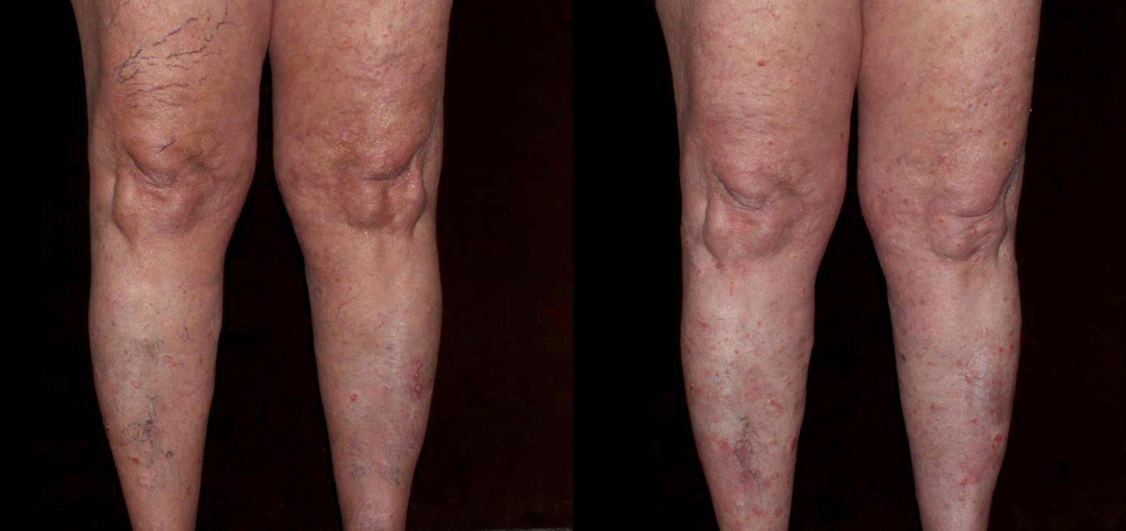 Spider Veins Before & After