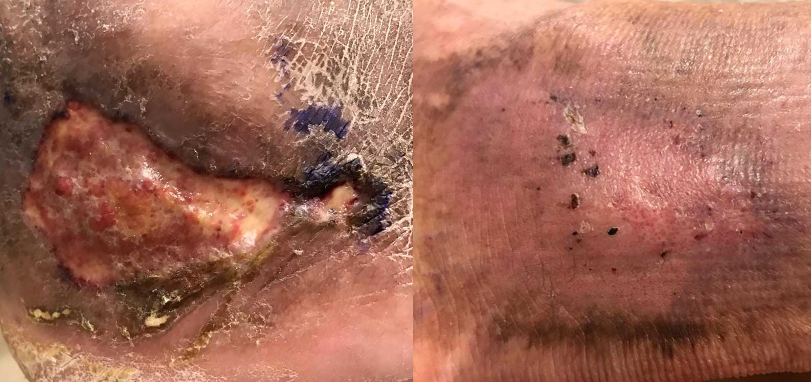 Venous Ulcer before and after treatment.