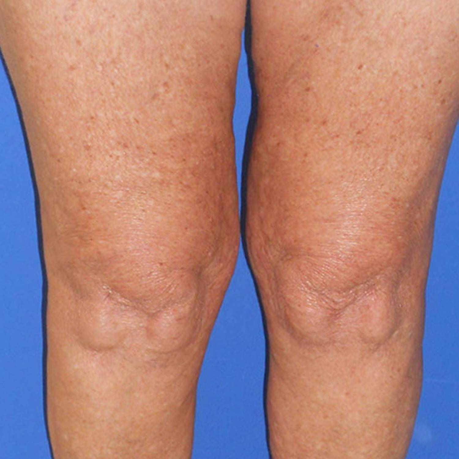 Spider veins on a patients legs are gone after surgery.