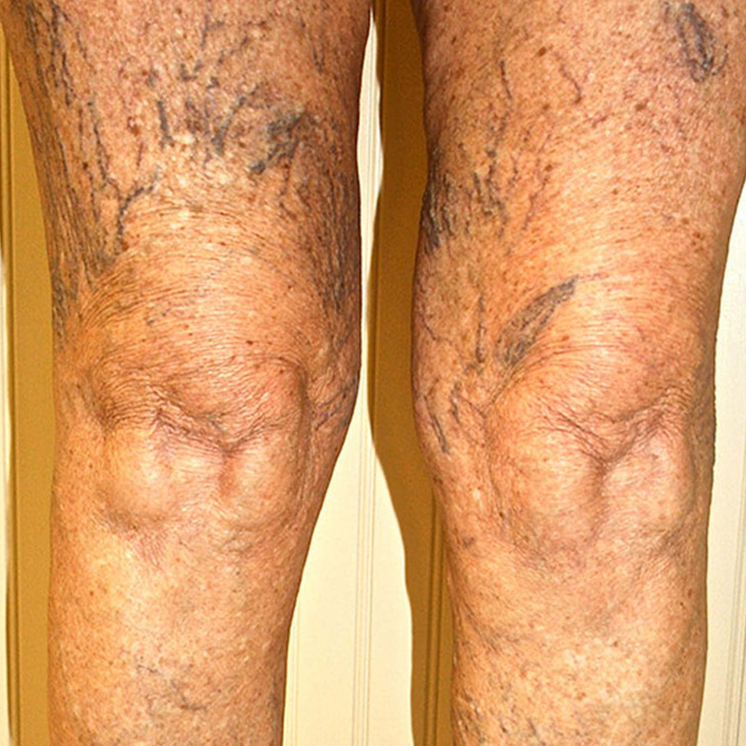 Spider veins on a patients legs before surgery.