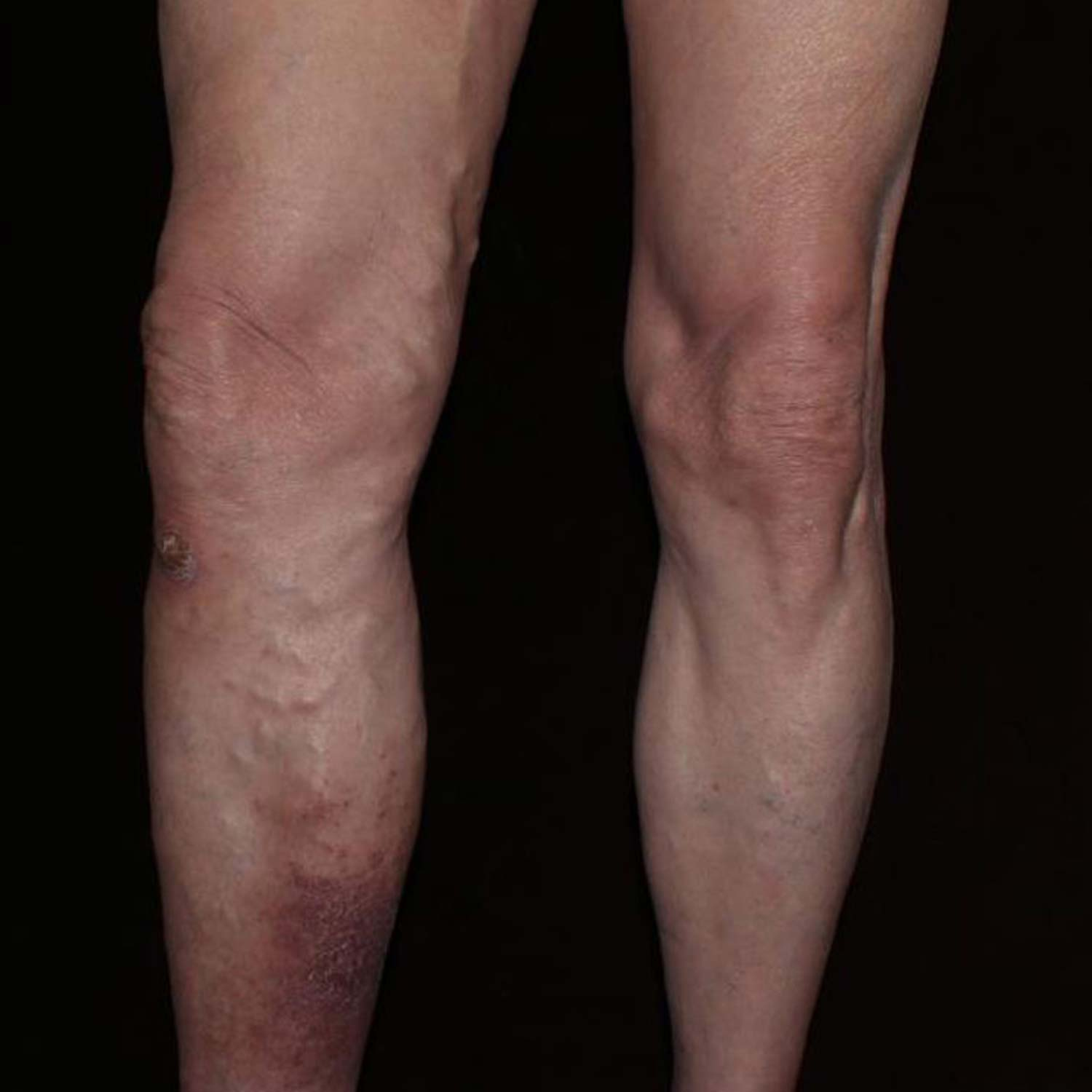 Varicose Vein before surgery.