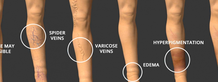 Diagram showing the progression of vein diseases. No visible signs, Spider Veins, Varicose Veins, Edema, Hyperpigmentation, Ulcer.