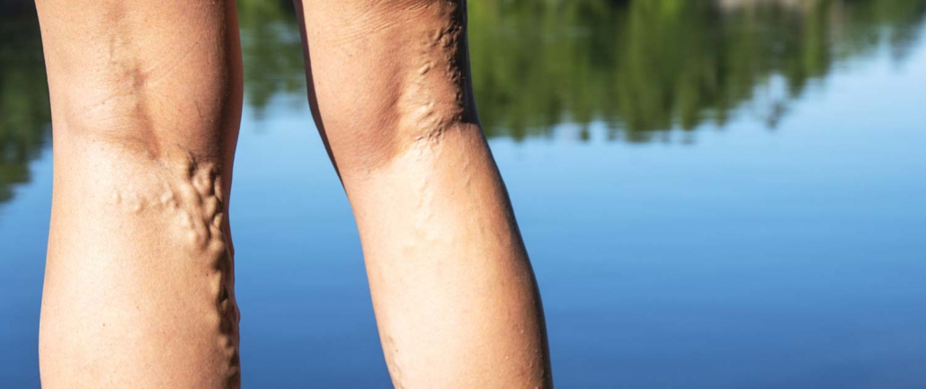 Varicose Veins on a woman's legs standing on the dock at a lake.