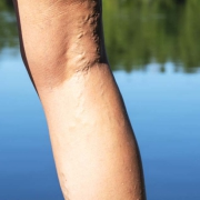 Missouri Vein Specialists Varicose Veins
