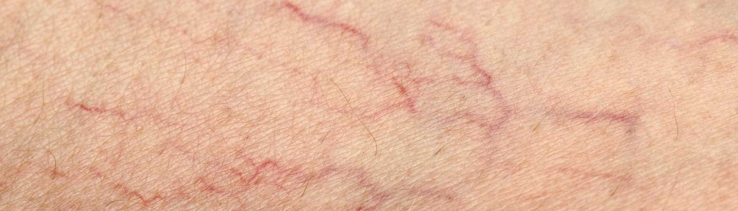 Close Up of Spider Veins on a Persons Leg
