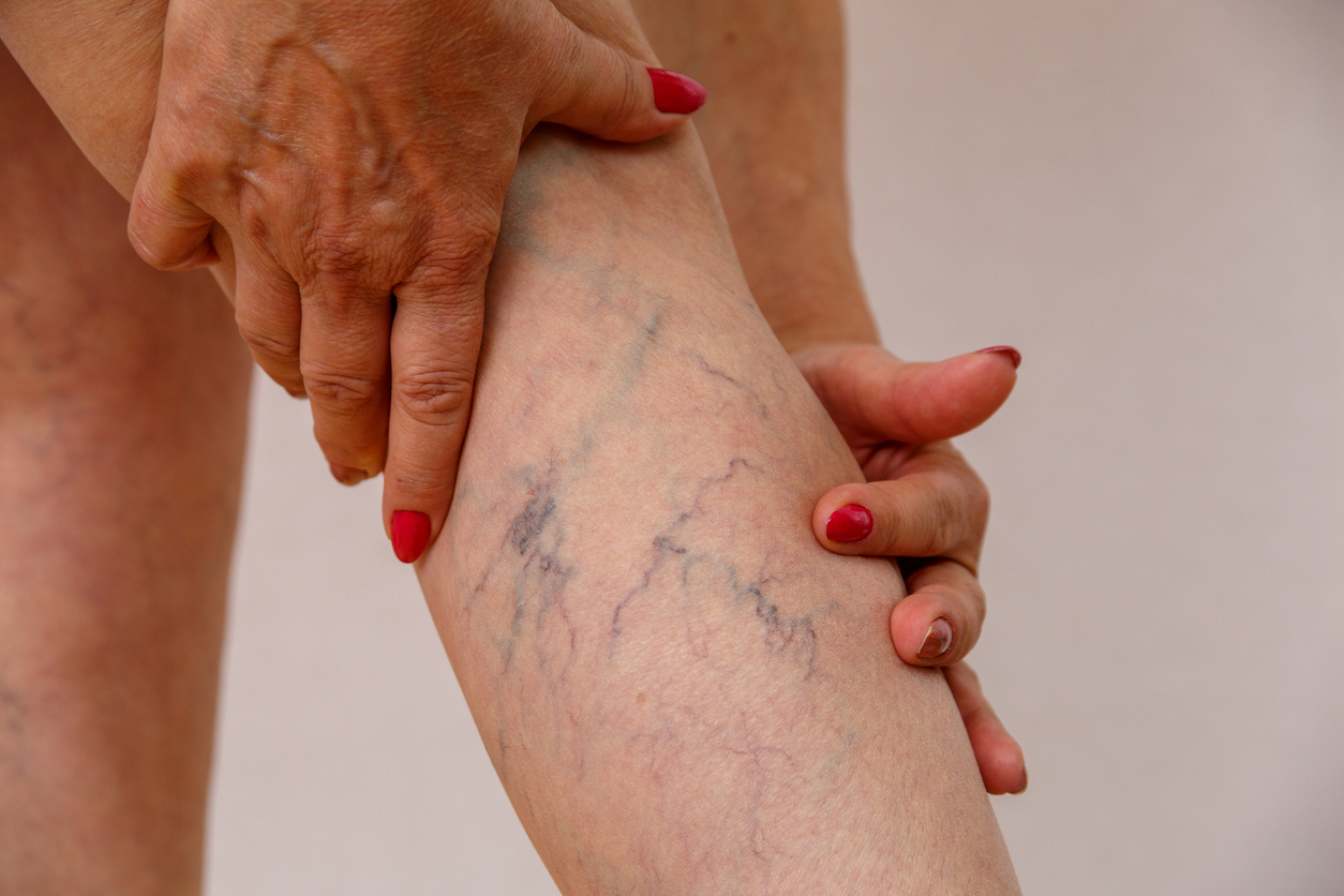 How to Prevent Varicose Veins from Getting Worse | Missouri Vein Specialists