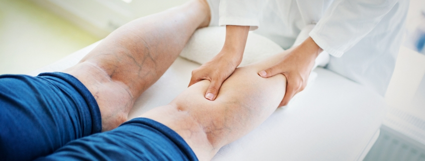 How Can a Vein Specialist Help Treat Cardiovascular Conditions? | Missouri Vein Specialists