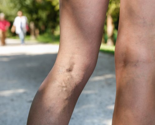 Woman with varicose veins in a park
